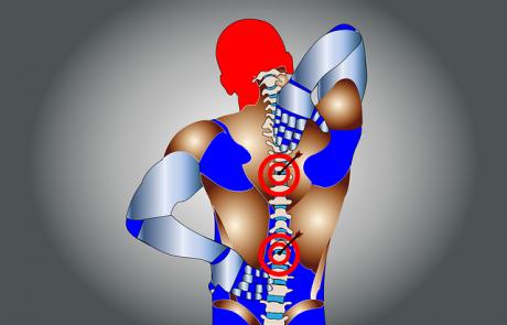למה חשוב לטפל בבעיות גב ואיך