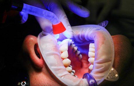 השתלת שיניים כמה זה עולה