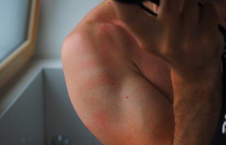 פצעים בגב