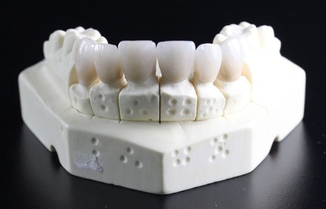השתלת שיניים ביום אחד – איך זה עובד?
